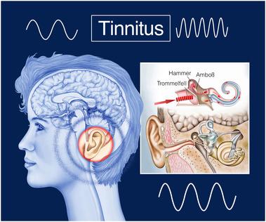Tinnitus, Ohrensausen, Innenohr, Hoersturz